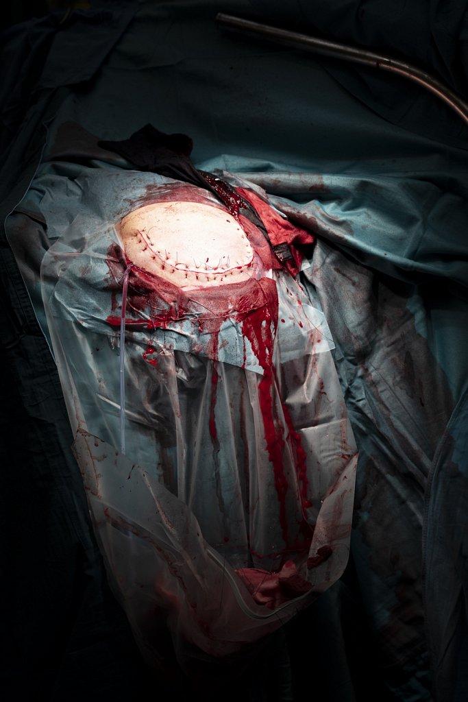 Op-Neurochirurgie